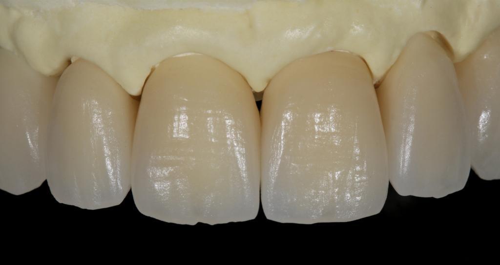 Ästhetischer Zahnersatz